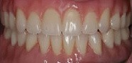 2 cosmetic dentures after