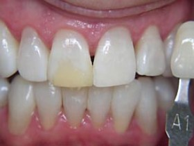 b2 tooth whitening2 after