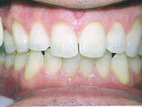 a2 teeth whitening after