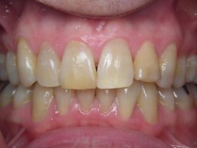 b1 tooth whitening2 before